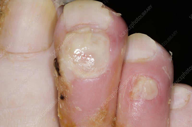 Toe infection in a diabetic