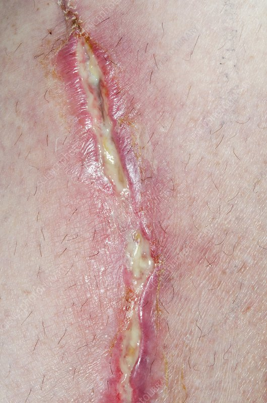 Infected wound on the leg