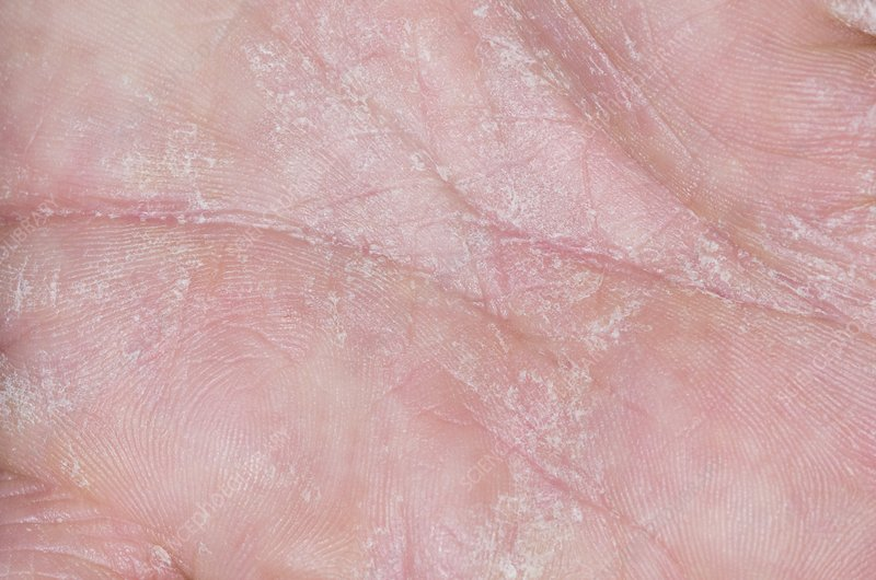 Eczema on the palm of the hand