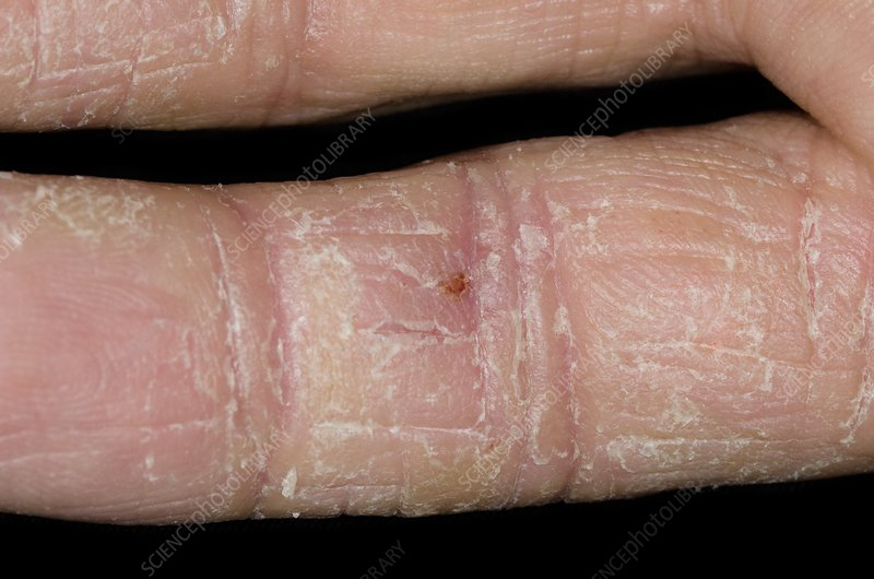 Eczema on the fingers