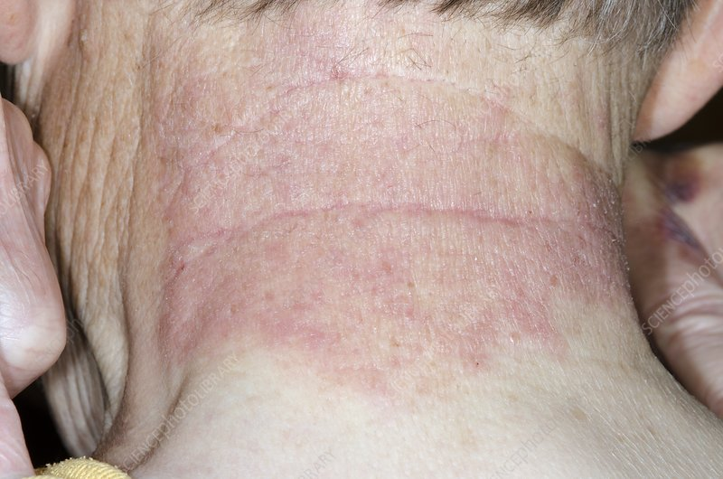Contact dermatitis on the neck
