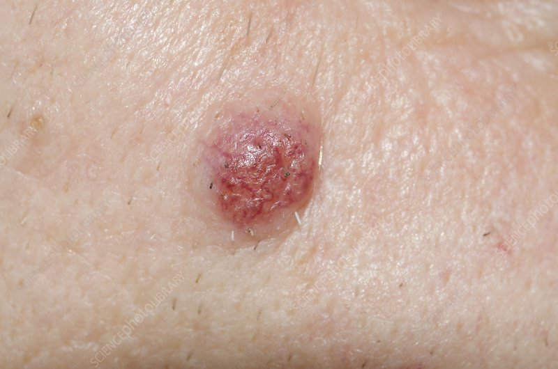 Intradermal naevus on the skin