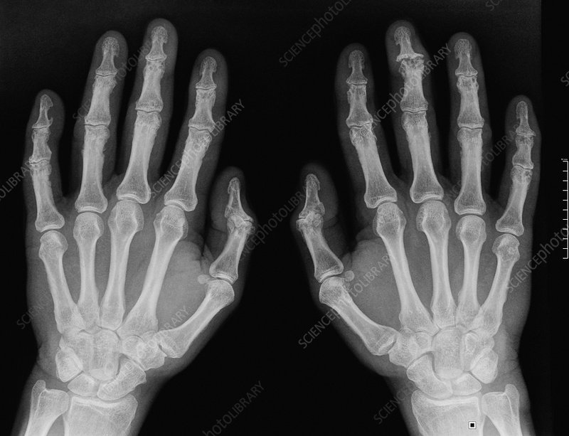 Osteoarthritis in the hands, X-ray
