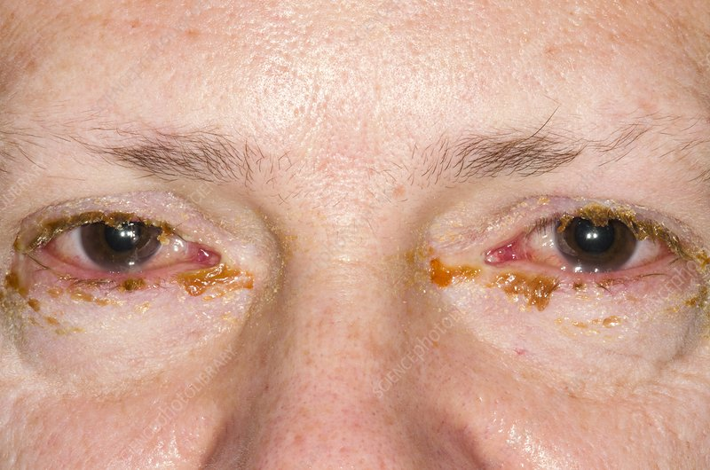 Viral conjunctivitis of the eyes