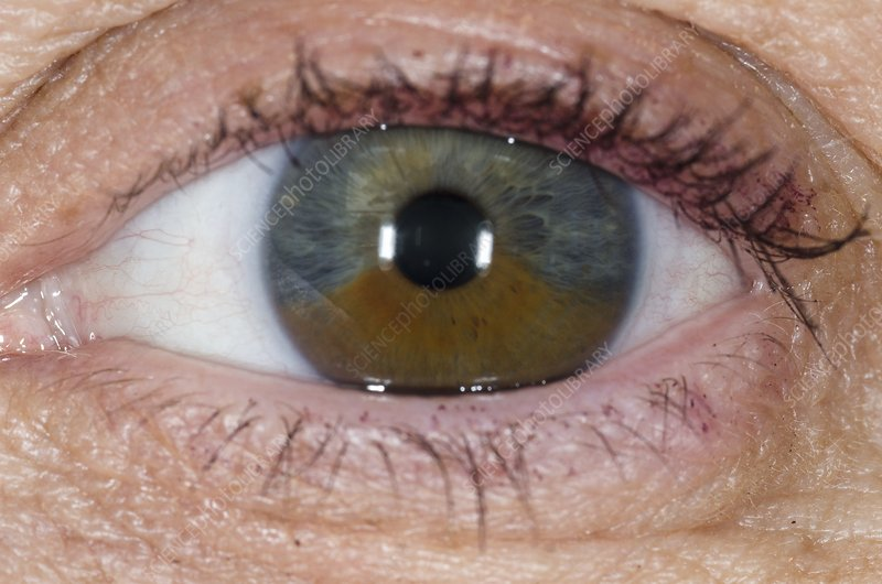 Birthmark on the iris