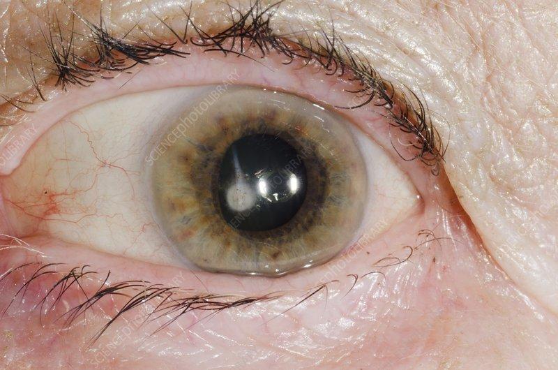 Cataract in the eye