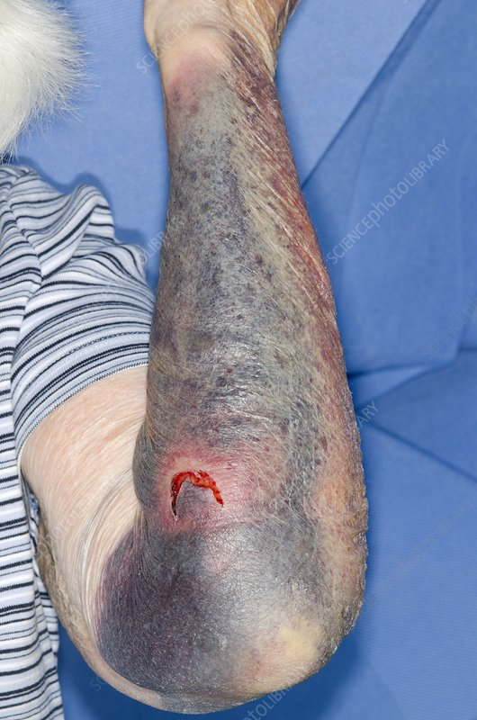Flap laceration with bruising on arm