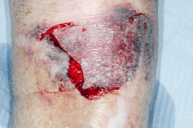 Flap laceration on the shin