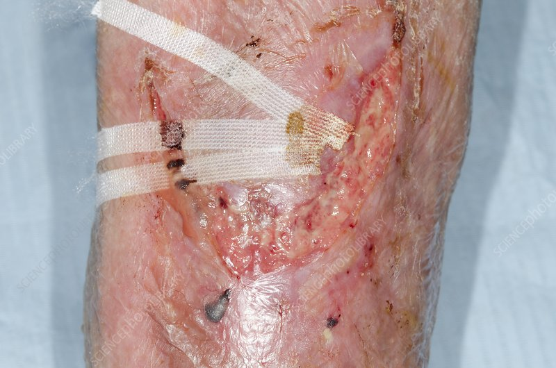 Infected flap laceration on the shin