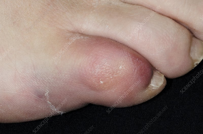 Fractured little toe