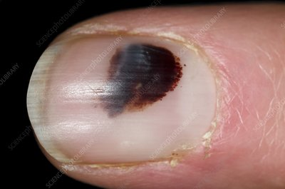 Bruise (haematoma) under fingernail