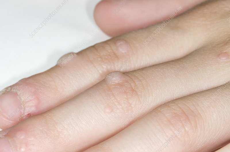 Warts on the fingers