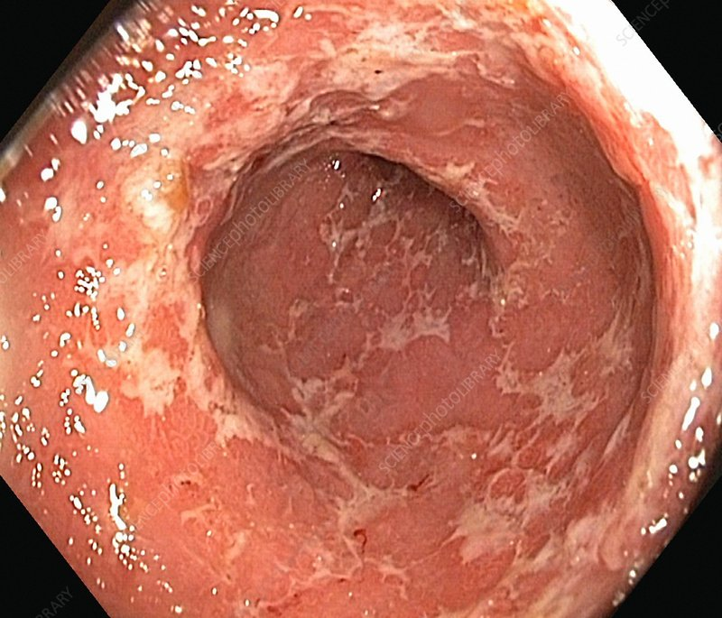 Ulcerative Colitis Endoscopic View Stock Image C016
