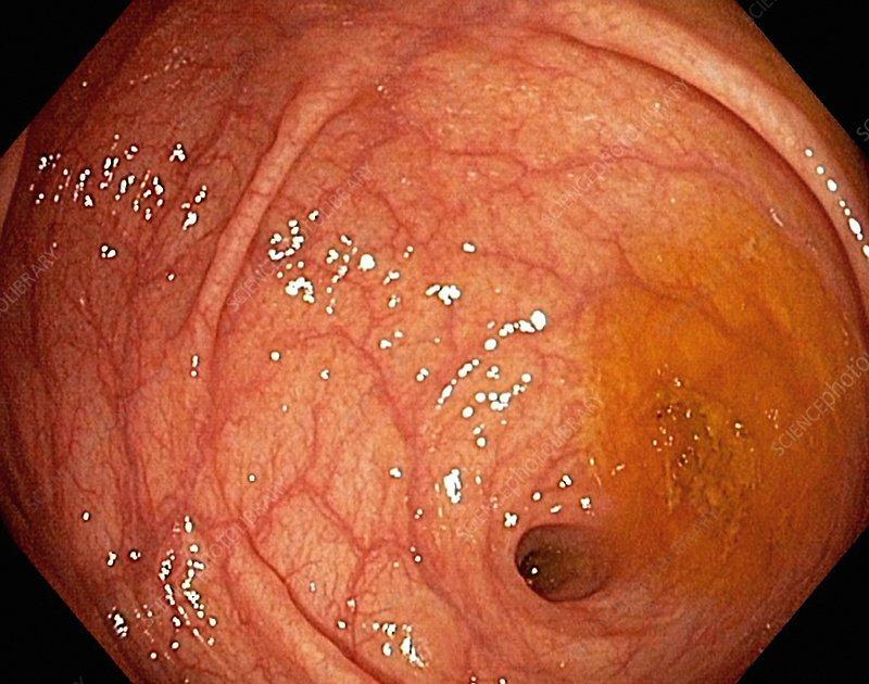 Caecum-appendix aperture, endoscopic view