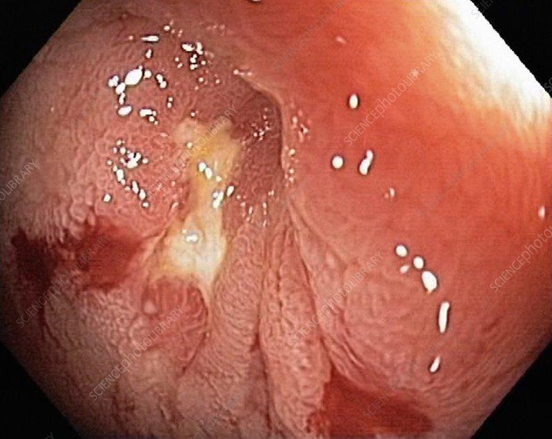 Crohn's disease, endoscopic view