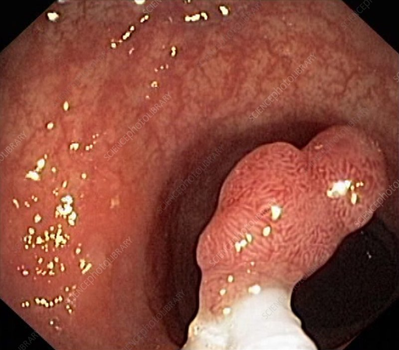 Intestinal polyp removal, endoscopic view