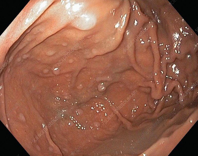 Hyperplastic polyps in the stomach