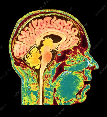 Normal human brain, MRI scan