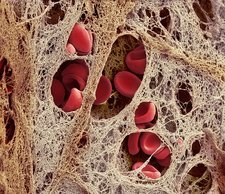 Coronary blood clot, SEM