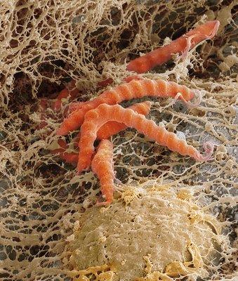 Bacteria is helicobacter organism pylori bacteria helicobacter pylori