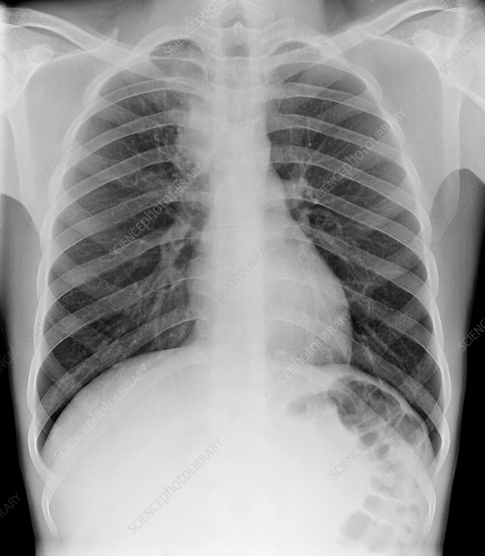 Tuberculosis, chest X-ray