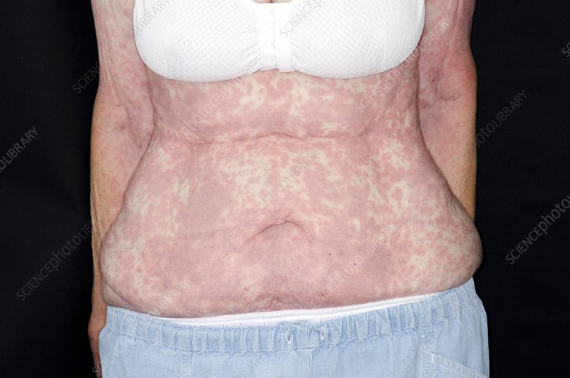 Skin rash after general anaesthetic