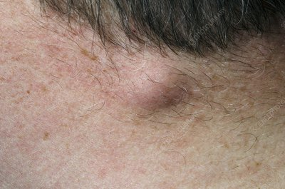 Sebaceous cyst on the neck