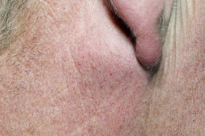 Sebaceous cyst behind the ear - Stock Image - C008/5628