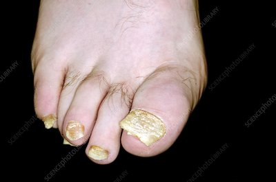 Psoriasis of the toenailsUnhealthy Toenails