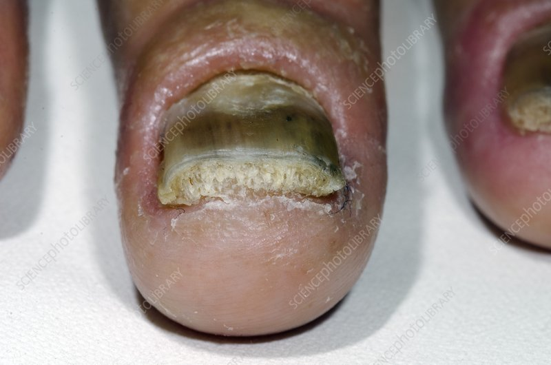 Psoriasis of the fingernail