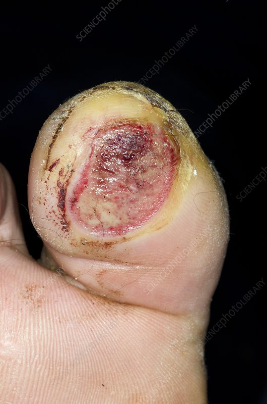 Infected blister on the toe