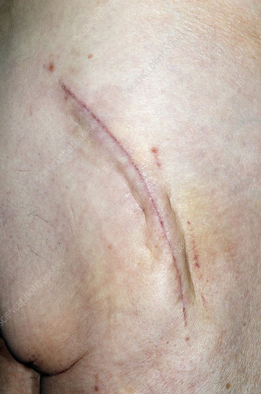 Scar from total hip replacement