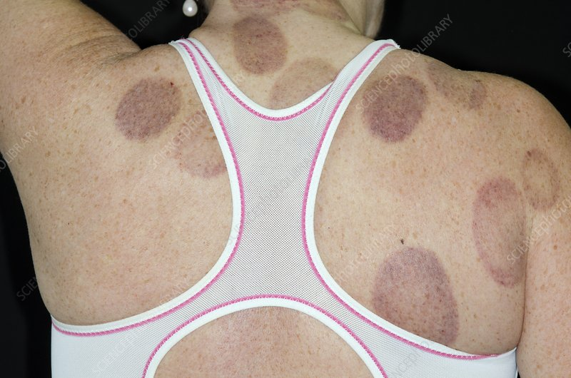 Bruises from Chinese cupping therapy