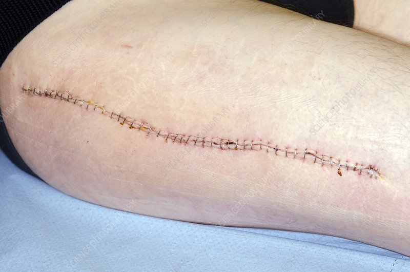 Stapled wound on the thigh