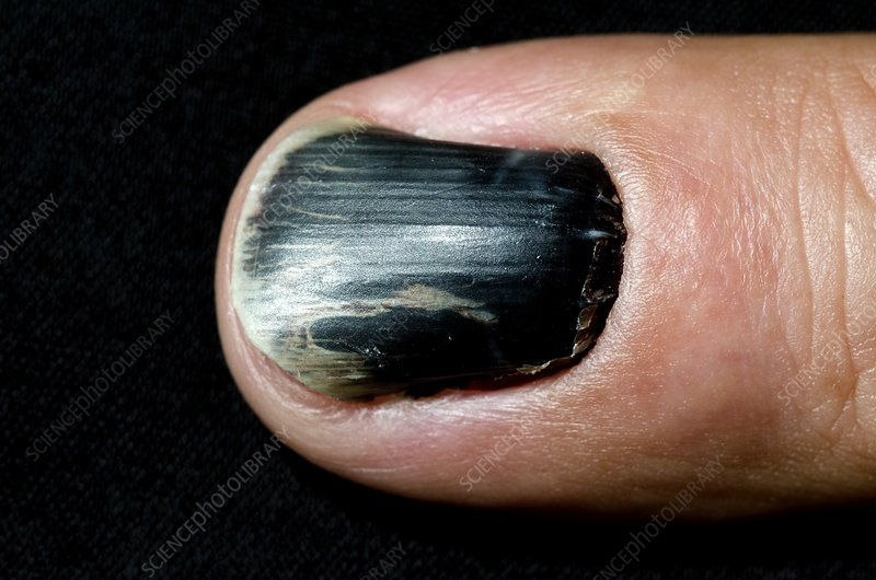 Bruising under the fingernail