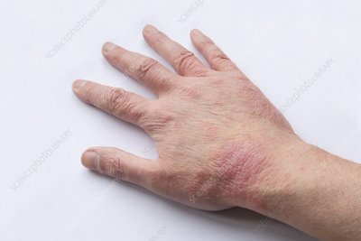 Atopic Eczema - right hand - 53 year old