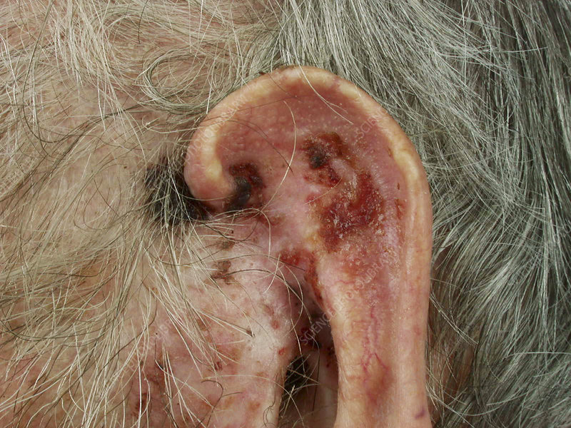 Morpheaform Basal Cell Carcinoma