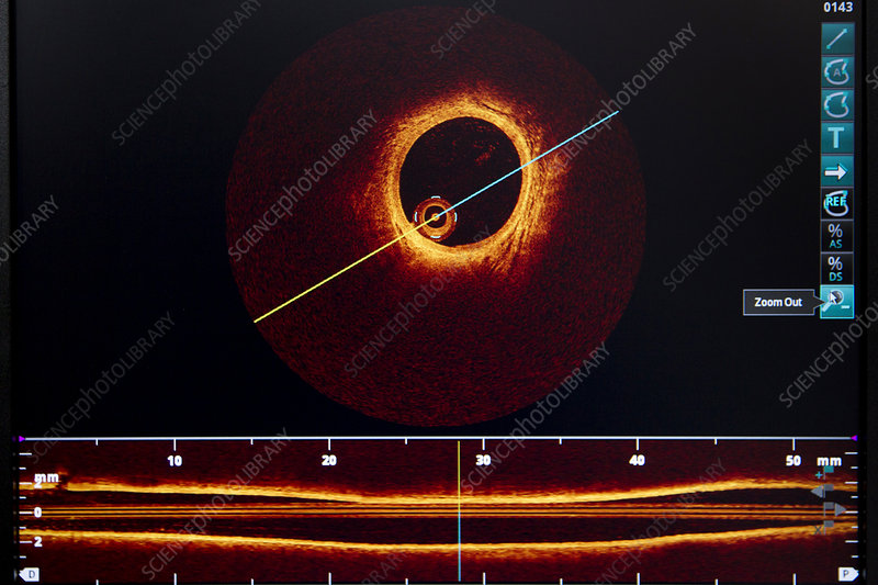 optical coherence tomography cardiology pdf