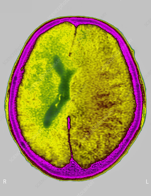 Brain Edema Ct Scan