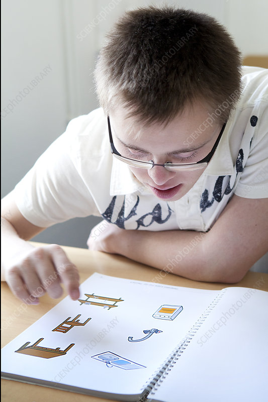 Adolescent, Down's Syndrome
