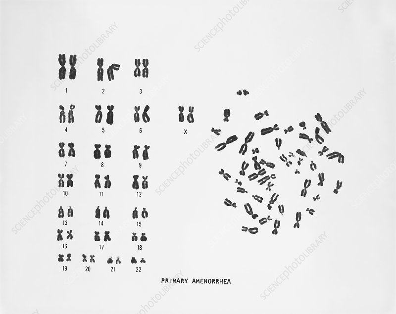 Primary Amenorrhea Karyotype