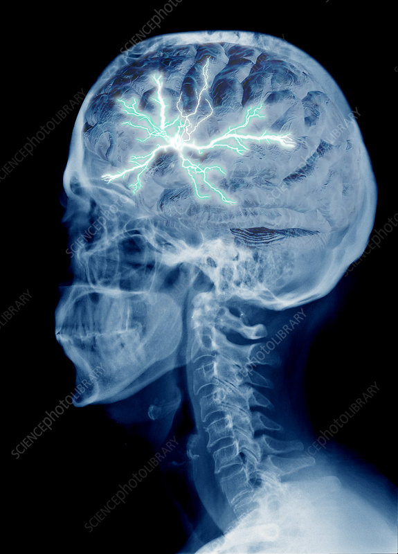 X-Ray of Head with Lightning