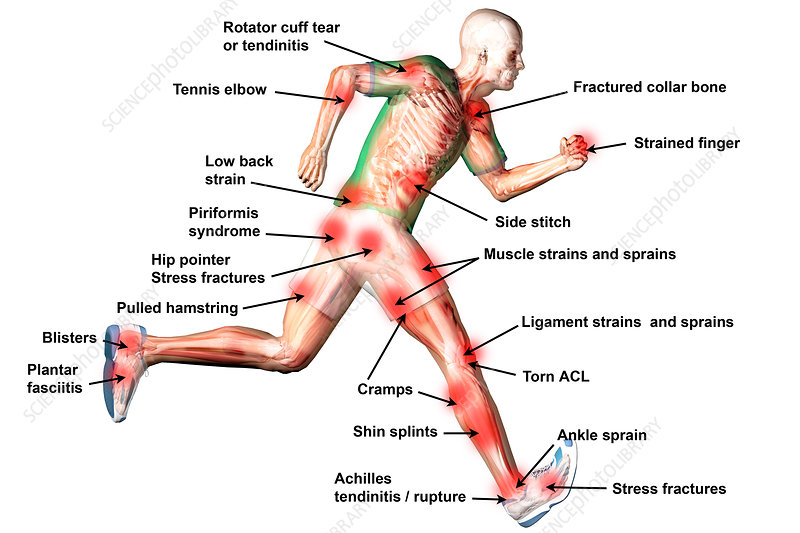 Common Sports Injury Locations