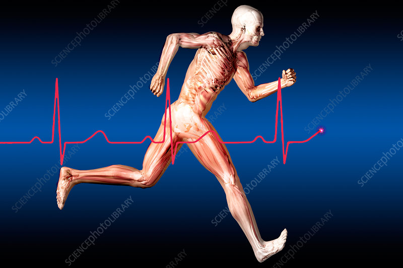 Anatomical Runner with Normal EKG