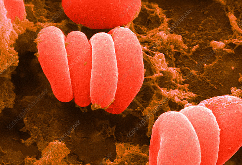 Red Blood Cells, Rouleaux Formation, SEM