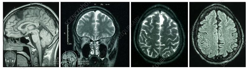 MRIs of Arachnoid Cyst