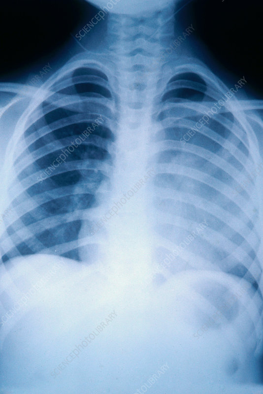 Lung Cancer, 6-Year-Old Patient