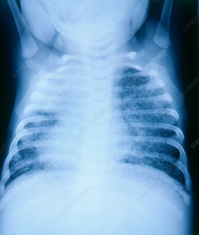Tuberculosis in 6-Month-Old, X-ray