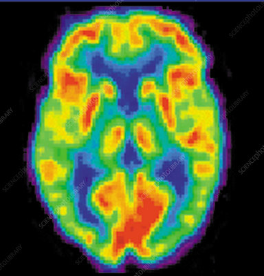 PET Scan of 20-year-old Brain, 1 of 2