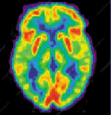 Pet scan of 80 year old brain 2 of 2